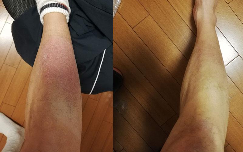脛の皮膚炎が治った写真